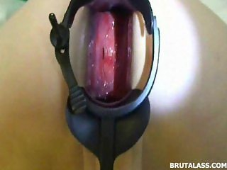 Ass brutally gaped by huge speculum and dildo